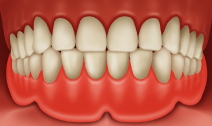 Place the denture in the mouth